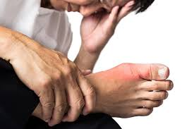 Get Rid Of Gout- Naturally Treating Gout Decreases The Chance Of Another Attack